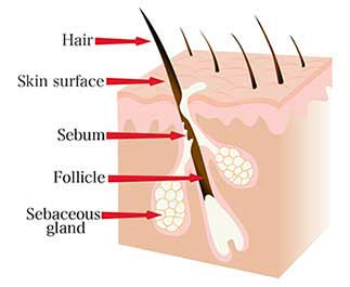 Hair-anatomy. Simplified diagram of the skin and hair