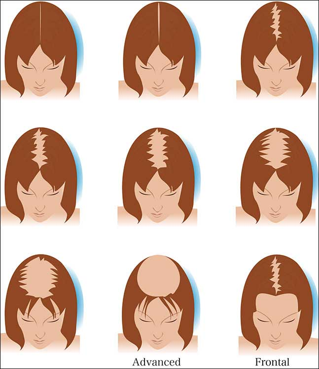 Female Pattern Hair Restoration