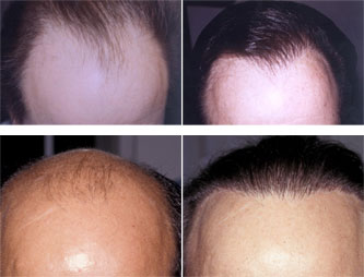 Before and After Photos - Hair Restoration