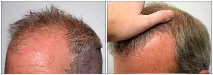 Robotic Hair Restoration - Before and After Treatment Photos - male patient, left side - oblique view