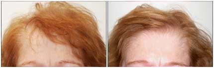 Before and After Treatment Photos - Female Pattern Hair Restoration - 72 year old female, front view (forehead)