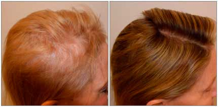 Before and After Treatment Photos - female patient (side view)