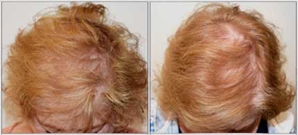 Before and After Treatment Photos - Female Pattern Hair Restoration - 72 year old female, top view