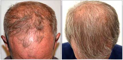 Robotic Hair Restoration - Before and After Treatment Photos - male patient, top view