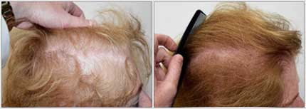 Before and After Treatment Photos - Female Pattern Hair Restoration - 72 year old female, right side view