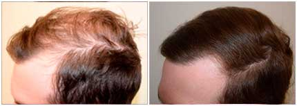 Before and After Treatment Photos - male patient (left side view)