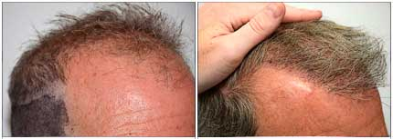 Robotic Hair Restoration - Before and After Treatment Photos - male patient, oblique view