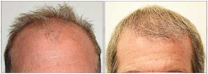 Robotic Hair Restoration - Before and After Treatment Photos - male patient, front view