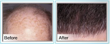 banner - photos of patient before and after hair transplantaion