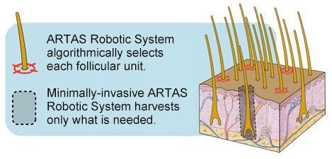 ARTAS diagram