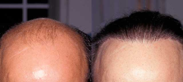 Before and After Photos: Hair Restoration - male, frontal view (patient 1)