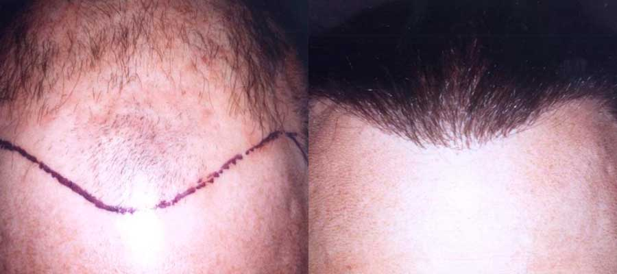 Before and After Photos: Hair Restoration - male, frontal view (patient 2)