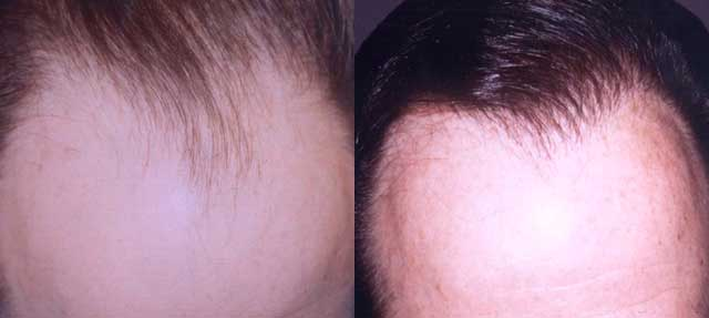 Before and After Photos: Hair Restoration - male, frontal view (patient 3)
