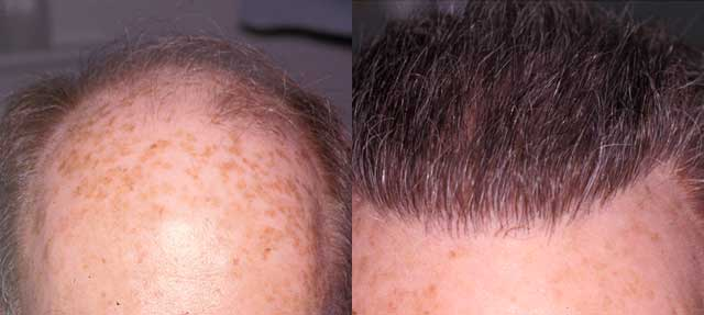 Before and After Photos: Hair Restoration - male, frontal view (patient 4)