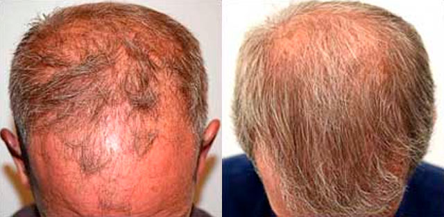 Before and After Photos: Hair Restoration - male, frontal view (patient 5)