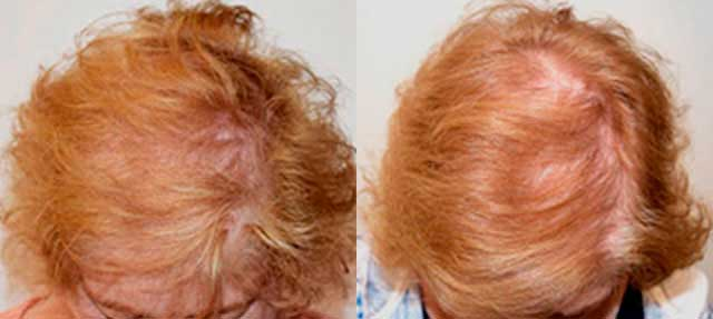 Before and After Photos: Hair Restoration - female, frontal view (patient 7)