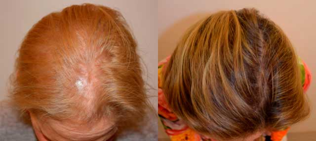 Before and After Photos: Hair Restoration - female, frontal view (patient 8)