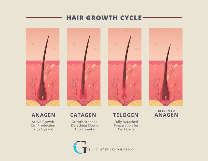 Dr. Thomas Griffin explains the three phases of the hair growth cycle.